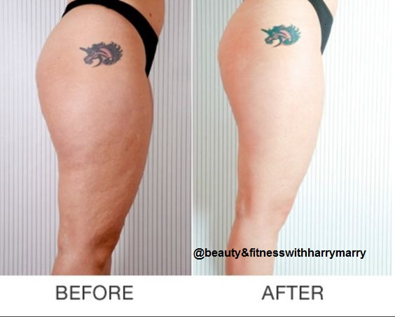 7 Best Exercises To Get Rid From Cellulite On Buttocks And -1625