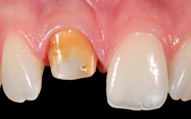 PDF: Clinical Periodontal Response to Anterior All-Ceramic Crowns with Either Chamfer or Featheredge Subgingival Tooth Preparations: Six-Month Results and Patient Perception