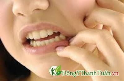 cách chữa đau răng đơn giản