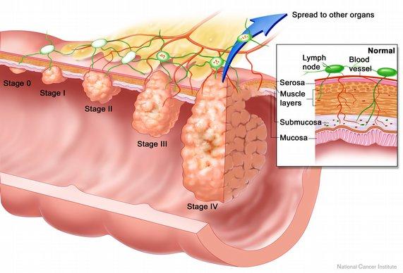 Metode Diagnosa Kanker Usus