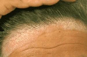Obat gatal herbal khusus kulit kepala ...