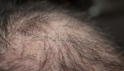 Rambut rontok pada pria