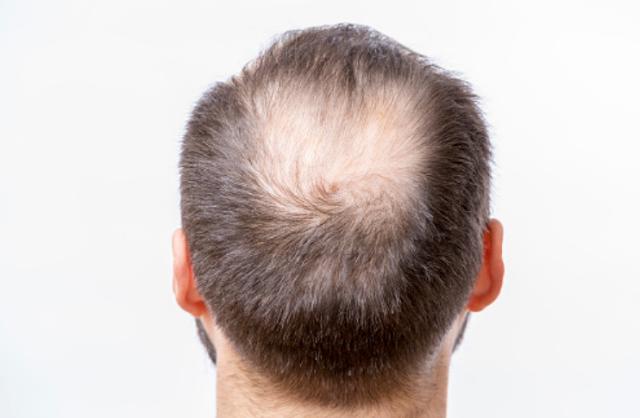 Penyakit Alopecia Pada Kalainan Rambut Pengertian Alopecia Alopecia adalah kelainan yang terjadi di mana jumlah rambut yang rontok lebih banyak dari rambut yang tumbuh. Pada beberapa kasus, rambut tidak tumbuh kembali, dan menyebabkan kebotakan atau bald spot. Rata-rata rambut rontok 25-100 helai rambut perhari. Disebut alopecia jika rambut rontok lebih dari 100 helai per hari. Jenis Alopecia Alopecia areata merupakan botak di beberapa titik Alopecia totalis merupakan botak seluruh kulit kepala Alopecia universalis merupakan botak seluruh rambut tubuh Tergantung pada penyebabnya, kondisi ini dapat terjadi sementara atau dapat berlangsung lebih lama. Alopecia dapat menyebabkan stress, namun alopecia dapat menjadi suatu tanda penyakit lain.  Tanda dan Gejala Alopecia Alopecia memiliki berbagai gejala dan tanda tergantung penyebabnya. Alopecia dapat terjadi secara mendadak atau bertahap dan dapat terjadi sementara atau permanen. Alopecia dapat terjadi pada kulit kepala atau bahkan seluruh tubuh. Berikut adalah beberapa gejala dan tanda alopecia : Rambut rontok lebih dari 100 helai per hari Terkadang muncul rasa terbakar atau sensasi gatal Kulit yang botak biasanya mulus, berbentuk bulat, dan berwarna peach Alopecia areata: kulit yang botak dapat berbentuk lingkaran. Biasanya, rambut rontok terjadi di kulit kepala, namun pada beberapa kasus, alopecia dapat terjadi di janggut atau alis. Alopecia totalis: rambut sangat mudah rontok saat anda menyisir rambut. Alopesia jenis ini biasanya menyebabkan penipisan rambut. Alopecia universalis: kemoterapi kanker dapat menyebabkan alopecia; biasanya rambut tumbuh kembali setelah itu.  Penyebab Alopecia Penyebab pasti alopecia masih belum diketahui. Meski begitu, para ahli medis menyatakan bahwa alopecia berhubungan dengan beberapa faktor berikut : Riwayat keluarga Jika anggota keluarga menderita alopecia, anda juga sangat berisiko tinggi dengan kondisi ini. Riwayat keluarga juga dapat menunjukkan usia menderita alopecia serta kemu