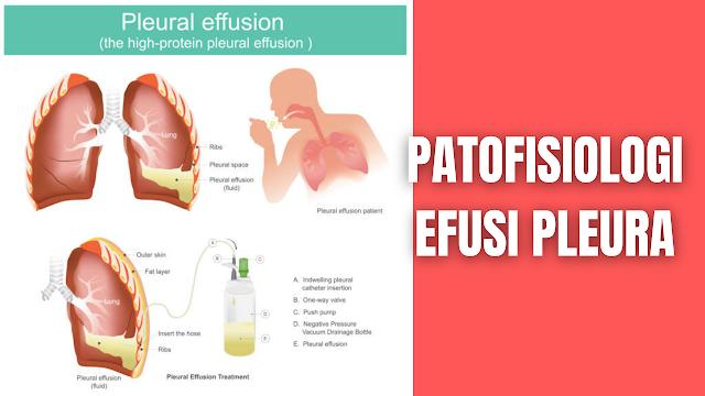 "Patofisiologi Efusi Pleura Pada Manusia Pleura parietalis dan viseralis letaknya berhadapan satu sama lain dan hanya dipisahkan oleh selaput tipis cairan serosa lapisan tipis dari selaput ini memperlihatkan adanya keseimbangan antara transudasi dari kapiler-kapiler pleura dan reabsorpsi oleh vena viseral dan parietal dan saluran getah bening. Efusi pleura adalah istilah yang digunakan bagi penimbunan cairan dalam rongga pleura, efusi pleura dapat berupa transudat atau eksudat. Transudat terjadi pada peningkatan tekanan vena pulmonalis, misalnya pada payah jantung kongestif pada kasus ini keseimbangan kekuatan menyebabkan pengeluaran cairan dari pembuluh.  Transudat juga terjadi pada hipoproteinemia seperti pada penyakit hati dan ginjal atau penekanan tumor pada vena kava. Penimbunan transudat dalam rongga pleura dikenal dengan nama hidrotorak. Cairan pleura cenderung tertimbun pada dasar paru-paru akibat gaya gravitasi. Penimbunan eksudat timbul jika ada peradangan atau keganasan pleura dan akibat peningkatan permeabilitas kapiler atau ganguan absorpsi getah bening. Eksudat dibedakan dengan transudat dari kadar protein yang dikandungnya dan dari berat jenisnya. Transudat mempunyai berat jenis kurang dari 1, 015 sedangkan kadar proteinnya < 3 %. Untuk cairan eksudat berat jenis dan kadar proteinnya lebih tinggi.    Nah itu dia bahasan dari patofisiologi efusi pleura pada manusia, melalui bahasan di atas bisa diketahui mengenai patofisiologi efusi pleura pada manusia. Mungkin hanya itu yang bisa disampaikan di dalam artikel ini, mohon maaf bila terjadi kesalahan di dalam penulisan, dan terimakasih telah membaca artikel ini.""God Bless and Protect Us"""