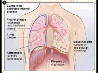 Mesothelioma - An Asbestos-Related Disease