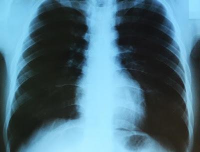 rontgen peran fisika dalam bidang kedokteran