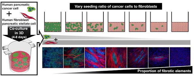 Image Attribute: Pancreatic cancer cells (green areas) and fibroblasts (non-green areas) were mixed in specialized culture vessels to create a novel three-dimensional cell culture model of pancreatic cancer in the laboratory. The cells were mixed at various ratios to enable the tweaking of the amount of fibrosis, from almost no fibrotic tissue (bottom panel, leftmost image) to almost completely fibrotic tissue (bottom panel, 2nd image from the left). When cultured together with cancer cells, fibroblasts began to express a protein characteristic of cancer tissue (red) that was not observed when fibroblasts were cultured alone (bottom panel, left most image). The model thus successfully captures and allows the analysis of the interactions between cancer cells and fibroblasts that drive the formation of fibrotic tissue.