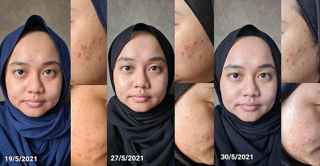 SOME BY MI AHA BHA PHA 30 Days Miracle Cream Review