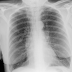 Signs of COPD on Chest X-Ray. Dr. Adil Ramzan