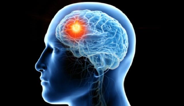 11 Fakta-Fakta Menarik tentang Otak Manusia