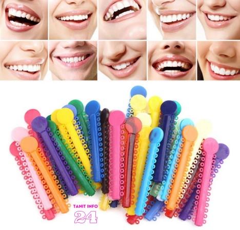 الوان التقويم على الاسنان, الوان التقويم الاسنان, أطباء الأسنان, طب الأسنان التجميلي, العناية بالفم, العناية الشخصية, ألوان تقويم الأسنان و أنواعها