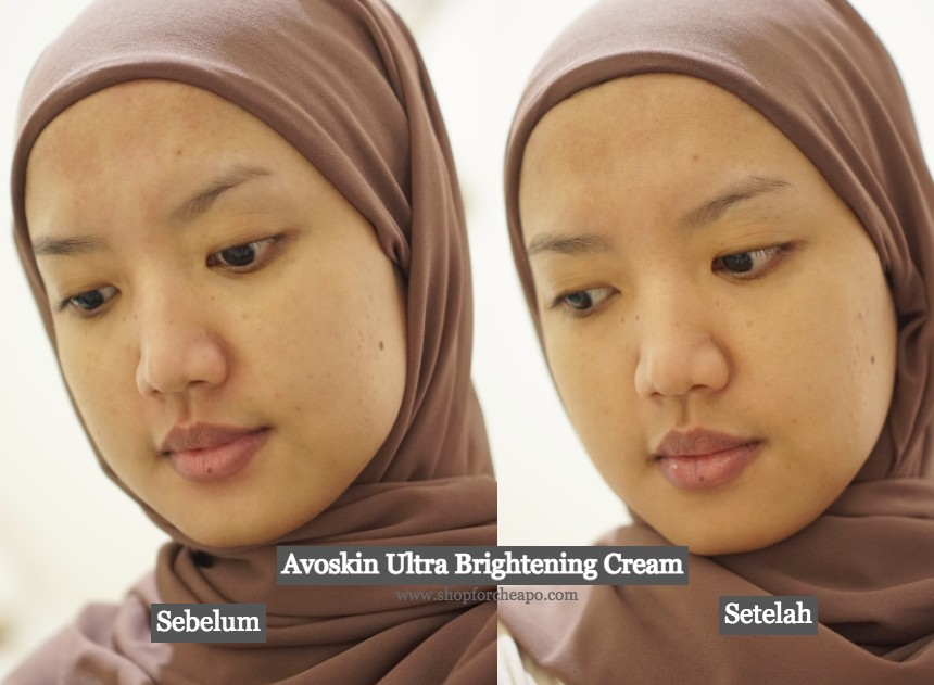 foto before after pemakaian 2 minggu avoskin ultra brightening cream