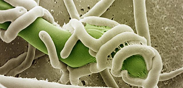 La degeneración cerca de las plantas los parásitos