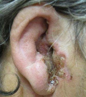 Oral and Topical Antibiotics in Acute Otitis Externa Treatment