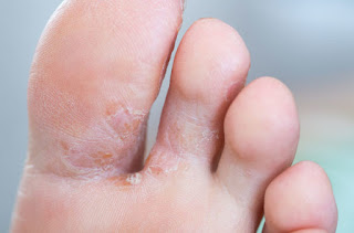 Fungal Infection in diabetes