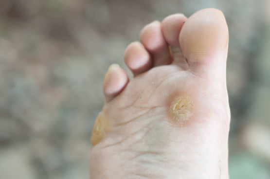 Remove Calluses and Corns Naturally and Painlessly
