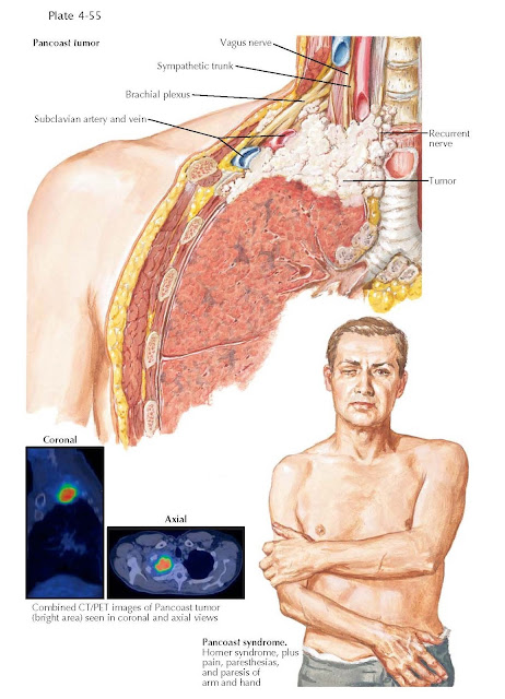 PANCOAST TUMOR AND SYNDROME