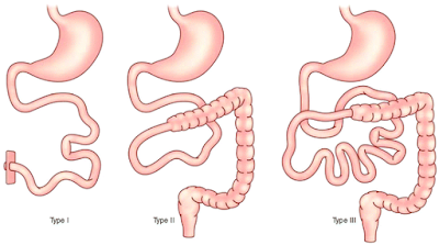 short bowel syndrome causes and treatment