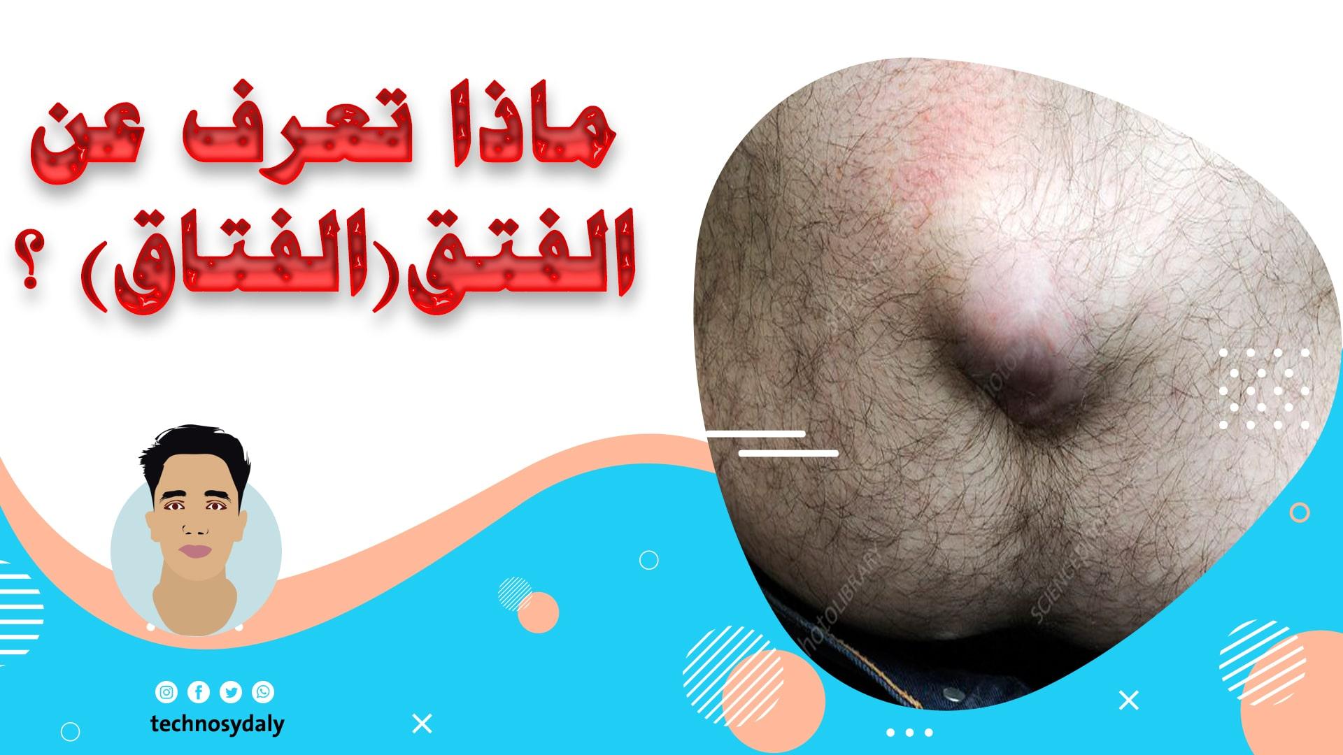 ماذا تعرف عن الفتق(الفتاق) ؟ What do you know about hernia
