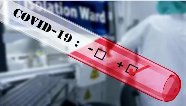 У МОЗ хочуть проводити 1 млн тестувань на антиген до Covid-19 на місяць