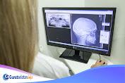 Begini Syarat Masuk Jurusan Radiologi yang Perlu Diketahui
