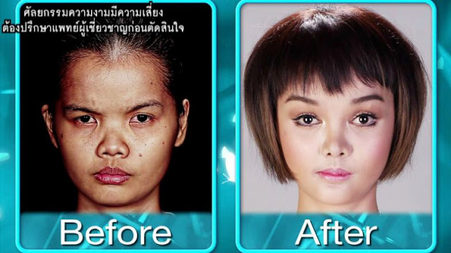 Photos: 20-year-old student mocked for her facial features gets transformed into a Barbie by Korean plastic surgeons