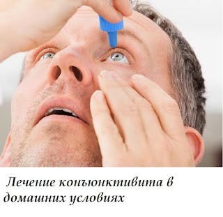 Лечение конъюнктивита в домашних условиях
