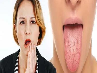 كيف اتخلص من جفاف الفم