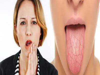 كيف اتخلص من جفاف الفم بطرق طبيعية