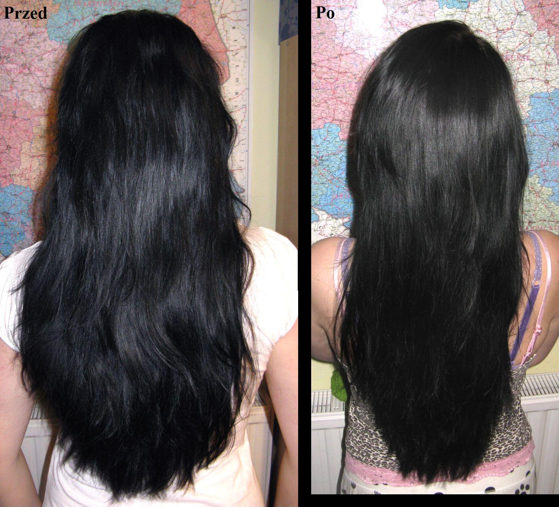 szampon na porost włosów u mężczyzn