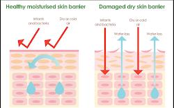 Apa Itu Skin Barrier?