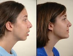 Best Dental Clinic In Hyderabad Oral Amp Maxillofacial