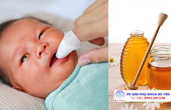rơ lưỡi bé bằng mật ong