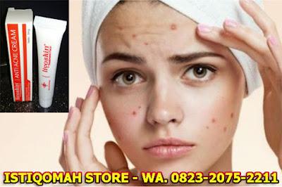 Cara Menghilangkan Jerawat secara Alami dengan Liyoskin Anti Acne