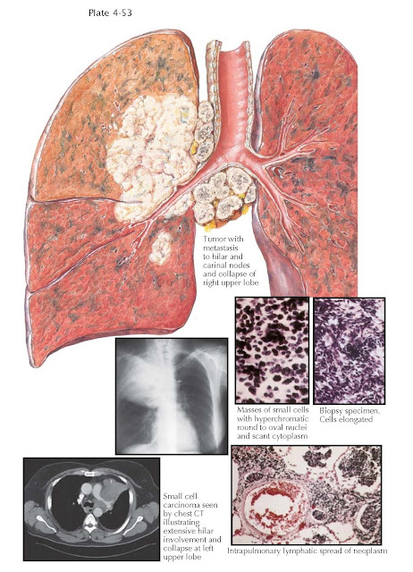 SMALL CELL CARCINOMAS OF THE LUNG