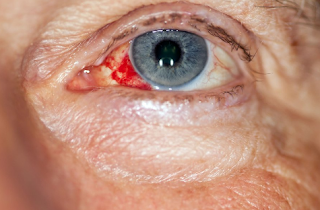 A red eye can be alarming