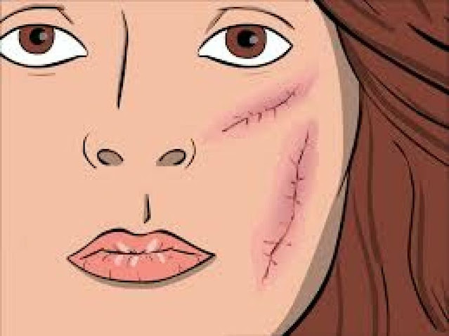 DIY soin cicatrisant à base des ingrédients naturels qui accélèrent la cicatrisation