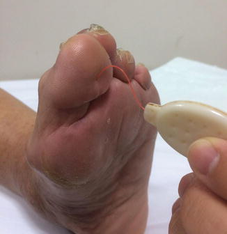 ThermoFot pour détecte les problèmes de pieds diabétique