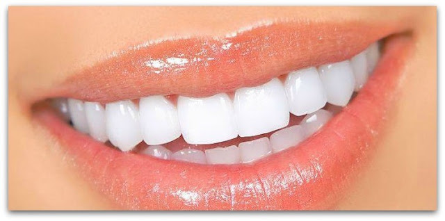 Home remedies for whitening teeth