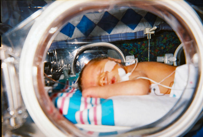 Asuhan Keperawatan Neonatal Respiratory Distress Syndrome