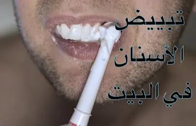 تبييض الأسنان بسرعة في البيت بأسهل وأسرع الطرق