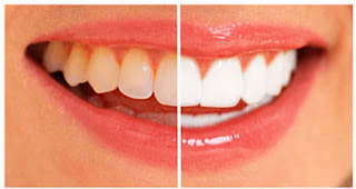 About Teeth Whitening Products Collection