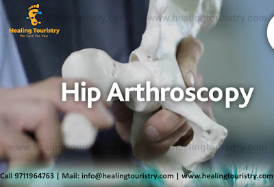 Best Hip Arthroscopy Surgery India