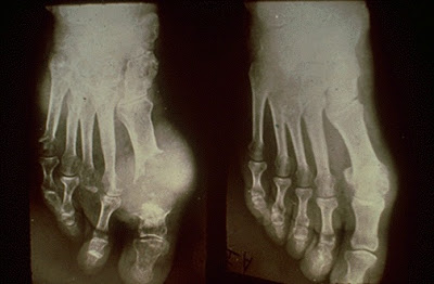 x-ray of feet with gout