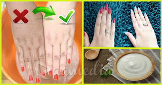whitening-hands-home-remedies