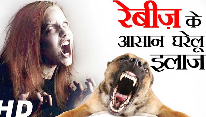 Rabies Treatment in Hindi