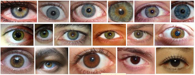 علاج الساد بدون جراحة - إعتام عدسة العين