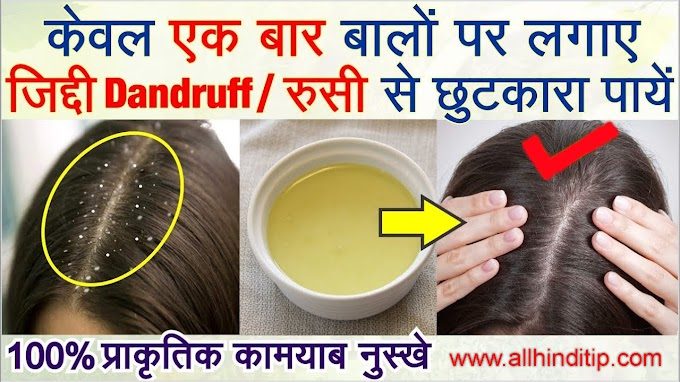 बालों से Dandruff Kaise Hataye - All Hindi Tips
