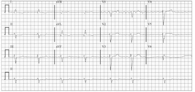 Coarse Atrial Fibrillation