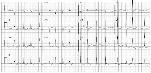 ECG of Atrial fibrillation with biventricular hypertrophy